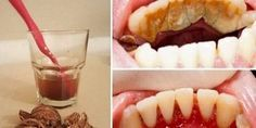 Ik weet niet of het werkt. Tandplak, tandsteen en bloedend tandvlees behoren tot het verleden dankzij…