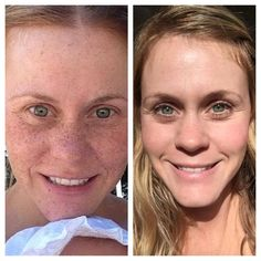 This is me, Susan Kennedy. I'm a Consultant for Rodan + Fields and these are my personal results. The picture on the left is before I found Rodan + Fields. The picture of the right is 7 months after I started the Reverse regimen. /