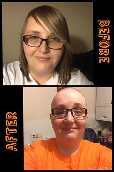 Fundraiser Head Shave during CRPS awareness month of November. Lisa raised  over £1000 for Burning Nights CRPS Support