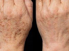 Reggelre hófehér bőrrel ébredt, nem ismert a kezeire! Health Quiz, Health Tips, Herbal Remedies, Natural Remedies, Vegan Protein, Green Life, Anti Aging, Herbalism, Healthy Lifestyle