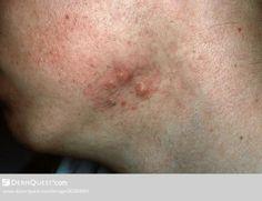 Natural Cure For Acne Keloidalis Nuchae