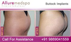 Fly to India for Buttock Implant Surgery (also known as Butt Implants, Buttock Augmentation, Butt Implant) at Less Price/Cost Compare to Gaborone, Francistown, , Botswana at Leading Cosmetic Surgery Center in Mumbai, India- Alluremedspa, Which Can give your Buttocks an Appearance that you Desire by Best Buttock Implant Surgeon/Doctor Dr. Milan Doshi.