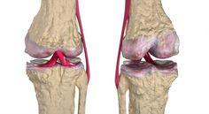 regeneración de cartilago