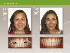 Teeth Braces, Braces Smile, Braces Before And After, Braces Tips, Teeth Alignment, Mouth Guard, Healthy Teeth, Rhinoplasty, Beautiful Smile