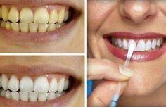Vinagre de manzana para blanquear los dientes / Apple vinegar to whiten your teeth at home .so simple ! Beauty Care, Beauty Hacks, Hair Beauty, Teeth Care, Skin Care, Body Hacks, White Teeth, Tips Belleza, Beauty Recipe