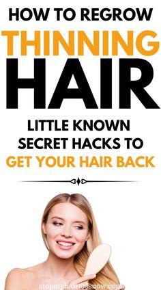 Thin Hair Styles For Women, Hair Essentials, Hair Loss Shampoo, Hair Growth Treatment, Hair Loss Women, Hair Loss Remedies, Hair Growth Tips, Natural Hair Tips, Hair Repair
