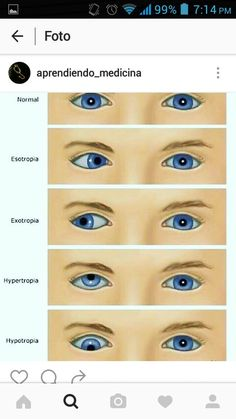 EYE VOCABULARY: words that describe eye-gaze along with a visual representation of the word. Medicine Notes, Medicine Student, Medical Students, Nursing Students, Nurse Teaching, Medical Laboratory Science, Med Student, Medical Field, Medical Information
