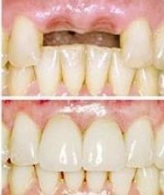 Advantages of replacing missing teeth with dental implants are many. To name few, dental implants help to -