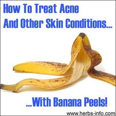 ❤ Banana skin can treat acne, bug bites, poison ivy, warts, hemorrhoids, fine lines, wrinkles. Click the link to learn more - and please share! ❤ #naturalskincare #healthyskin #skincareproducts #Australianskincare #AqiskinCare