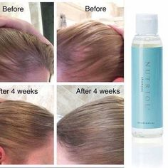 Nutriol shampoo great for growing hair bald patches hair loss ORDER direct bas Hair Growth Shampoo, Nu Skin, Grow Thicker Hair, Grow Hair, Hair Remedies For Growth, Hair Loss Remedies, Male Pattern Baldness, Prevent Hair Loss, Beauty