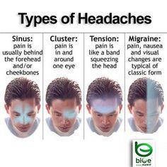 Tengo dolor de cabeza