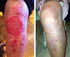 is a skin condition that affects around of the population. Sufferers experience red, flaky and crusty patches of skin which are covered with silvery scales. it is not contagious, but uncomfortable to live with. Why not treat yours with Psoriasis On Hands, Types Of Psoriasis, Severe Psoriasis, Scalp Psoriasis Treatment, Psoriasis Symptoms, Psoriasis Arthritis, Psoriasis Cream, Psoriasis Skin, Psoriasis Remedies