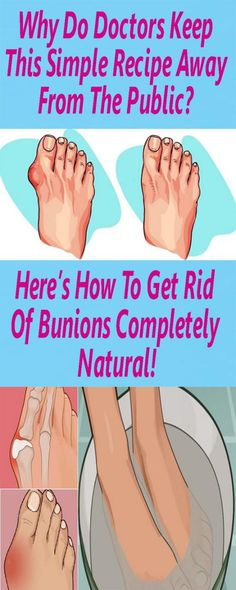 Bunions are most likely normal among many individuals. They are really salt stores, additionally, angina, flu, gout, terrible digestion, rheumatic contaminations, less than stellar eating routine a…