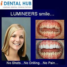 Lumineers are a type of porcelain veneers made of special type of porcelain called Cerinate porcelain.