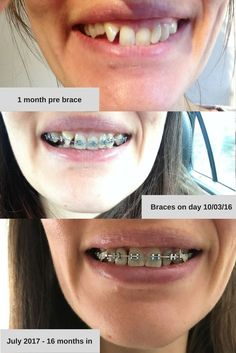 Get rid of the gap between your teeth without braces | Beauty Tips ...