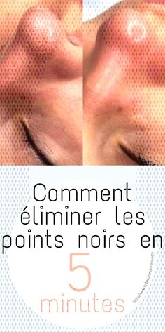 #éliminer #comment #minutes #points #noirs #les #en #5 Comment éliminer les points noirs en 5 minutesYou can find Best face makeup and more on our website.Comment éliminer les points noirs en 5 minutes Best Face Makeup, Eye Makeup, Makeup Eye Looks, Le Point, Best Face Products, Eyes, Movie Posters, Soup Recipes, Makeup Eyes