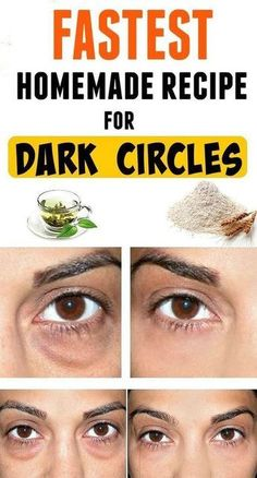 Today we would like to share with you a great remedy for dark circles and bags under your eyes. It is a very simple recipe, with ingredients found in every kitchen. of rice flour -cold, green tea. Dark Circle Cream, Dark Circle Remedies, Beauty Hacks For Teens, Dark Circles Under Eyes, Under Eye Bags, Anti Ride, Puffy Eyes, Dark Eyes, Dark Brows