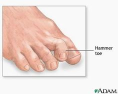 Your Crooked Toes May Be Hammer Toes
