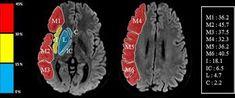 aspects stroke - Google Arama