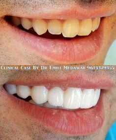Hollywood smile Lebanon, Dr Emile Medawar 9613379355 www.emilemedawar.com #hollywoodsmile #lebanon #beirut #dentist #teethwhitening #veneers #dentalimplants #lumineers #emilemedawar #dentalclinic #gummysmile