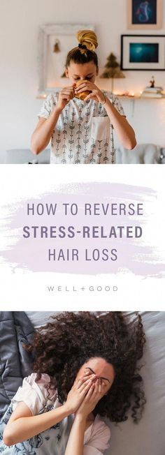 How to reverse hair loss from stress. #WhatToDoForHairLoss #BiotinHairLossShampoo #HairLossCureNaturalWay #NaturalHairLossPrevention Baby Hair Loss, Dht Hair Loss, Biotin For Hair Loss, Hair Loss Cure, Oil For Hair Loss, Hair Loss Remedies, Biotin Hair, Quinceanera, Diy Hair Loss Treatment