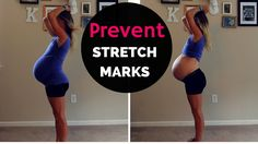 FREE prenatal workout program that takes you day by day, week by week, through each trimester of your pregnancy! Challenging prenatal at-home workouts for motivated women who want to look and feel super fit throughout pregnancy. Bio Oil Stretch Marks, Prevent Stretch Marks, Stretch Mark Removal, Care During Pregnancy, Stretch Marks During Pregnancy, Post Pregnancy, Prenatal Workout, Pregnancy Workout, Pregnancy Fitness