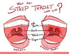 Strep Throat Home Remedies: Garlic, Salt, & MoreHome Remedies That Really Work