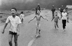 43 ans après, la petite fille vietnamienne brûlée au napalm tente de soigner ses blessures au laser
