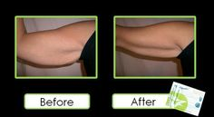 These wraps work great on loose skin! Fast Weight Loss, Weight Loss Program, Weight Gain, Losing Weight, Reduce Weight, How To Lose Weight Fast, Ultimate Body Applicator, It Works Global, Defining Gel