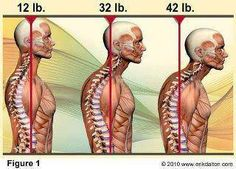 Notice how the average head weighs 12lbs when balanced on top of the body - as soon as it starts to move forwards, out of balance, the weight increases dramatically putting more and more pressure on the spine and back muscles to carry this burden.