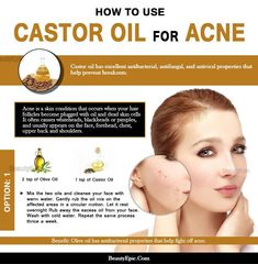 How to Use Castor oil for Acne It is a serious blow to our confidence when these acne show up. A very common home remedy is the use of castor oil for acne which has been discussed here. Castor Oil For Acne, Coconut Oil For Acne, Home Remedies For Acne, Acne Remedies, Natural Remedies, Acne Causes, Sagging Skin, How To Get Rid Of Acne, Oils For Skin