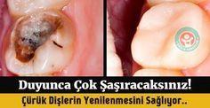 Aspirin diş çürüklerini onarıp yeniliyor! - Sağlık Haberleri