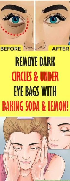 Remove Dark Circles - Under Eye Bags with Baking Soda - Lemon! Great Healt Remove Dark Circles – Under Eye Bags with Baking Soda – Lemon. Diy Beauty Hacks, Beauty Hacks For Teens, Baking Soda And Lemon, Baking Soda Hair, Dark Circles Under Eyes, Dark Spots Under Eyes, Remove Dark Eye Circles, Under Eye Wrinkles, Under Eye Puffiness
