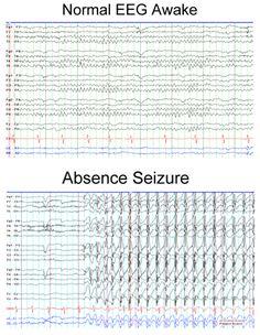 Normal EEG Awake compared to Lennox-Gastaut Syndrome Myoclonic Epilepsy, Epilepsy Tattoo, Epilepsy Types, Temporal Lobe Epilepsy, Epilepsy Awareness Month, Epilepsy Surgery, Seizures In Children, Brain Waves, Health