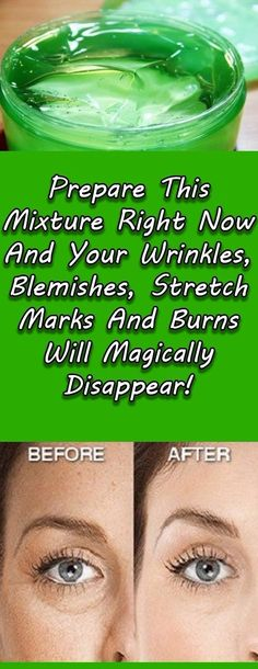 Stretch marks,  wrinkles, blemishes and burns are common problems among people nowadays, especially women. They buy many different creams a...