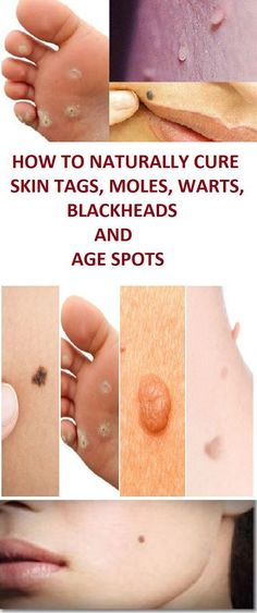 Natural Remedies To Remove Warts, Dark Spots, Blackheads And Skin Tags Quickly