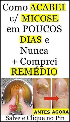 remedio caseiro para micose de unha \ remedio caseiro par… in 2020 How To Know, Need To Know, Face E, 1. Tag, Natural Home Remedies, Health Problems, Aloe Vera, Body Care, Beauty Hacks