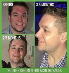Rodan+Fields Soothe Regimen is undeniably THE regimen that will control Rosacea and it's symptoms! Message me