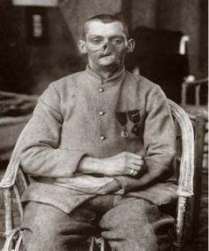 Nederlandse cocaïne aan het front tijdens de Eerste Wereldoorlog