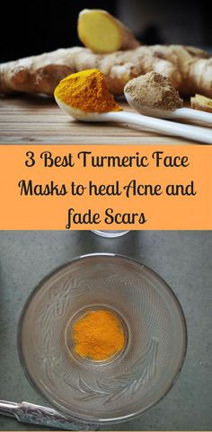 3 turmeric face masks to help your acne heal and your acne scars to fade #CharcoalMaskPeel Scar Remedies, Natural Remedies, Cold Remedies, Tea Tree Oil For Acne, Acne Face Mask, Acne Skin, Acne Scar Removal, Homemade Face Masks, How To Treat Acne