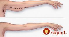 Tipy, ktoré vám pomôžu zbaviť sa ovísajúceho tuku na pažiach