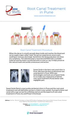 Give your teeth a painless root canal treatment with Dr.Sandeep Bhirud's Sweet Smile Dental Clinic. Get best Root canal treatment in affordable cost at Sweet Smile Dental Clinic.