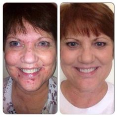 """""""After visiting 5 different dermatologists and being told they could do nothing for her, Becky B gave the UNBLEMISH regimen a try. These unretouched photos show her results in just 6 WEEKS OF USE! Who do you know that could benefit from the 60 day 100% satisfaction guaranteed products developed by the best known names in dermatology, Dr. Katie Rodan and Dr. Kathy Fields? Give us a try before using oral medications for acne. 60 day money back if not:)…"""