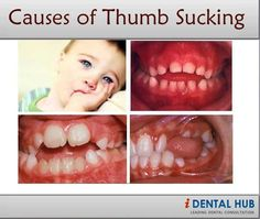 Knowing the cause of thumb sucking by child is important for treatment planning.