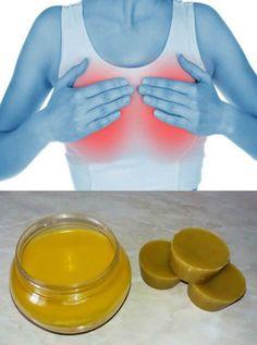 Мастопатия – лечение народными средствами в домашних условиях