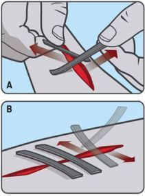 You can use duct tape to fix wounds | Clean the cut well - this is for emergency situations | add it to your First Aid or survival kit | Get medical help once out of the outdoors | #survivalkit