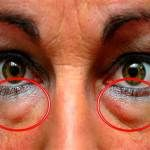 The best natural treatments to remove dark circles and bags under the eyes. Some people are more likely than others to have dark circles or puffiness in . Eye Circles, Dark Circles, Under Eye Bags, Vicks Vaporub, Blackhead Remover, Tips Belleza, Natural Treatments, Natural Remedies, Skin Care Tips
