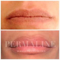 Permanent makeup lips. Customer requested a larger upper lip. Picture taken immediately  after procedure.