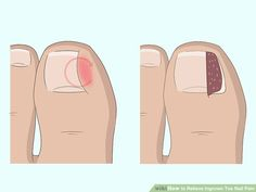 5 Ways to Relieve Ingrown Toe Nail Pain - wikiHow Ingrown Nail Removal, Remove Ingrown Toe Nail, White Nail Designs, Simple Nail Designs, Infected Toe, Toenail Pain, Best Toe Nail Color, Coffin Nails Designs Summer, G Nails
