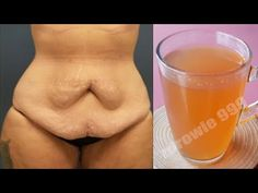 Weight Loss Drinks, Catering, Beauty, Food, Youtube, 1 Cup, Scrappy Quilts, Health, Catering Business